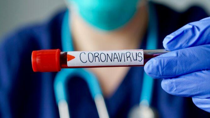 Koronawirus SARS-CoV-2 na świecie. <br />Co wiemy, czego nie i co robić dalej?